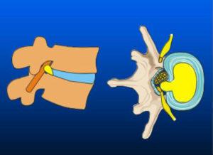Fig. 2 Diskusprolaps set fra siden (venstre billede) og oppefra (højre billede)