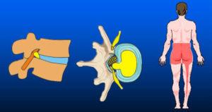 Fig. 3 Diskusprolaps med irritation og tryk på nerve som medfører smerter ned på hele bagsiden af det ene ben.
